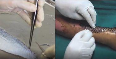 Pele de Tilápia para o tratamento de queimaduras. Fonte: veja.abril.com.br